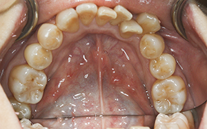 施術前の下の歯列